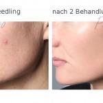 needling2